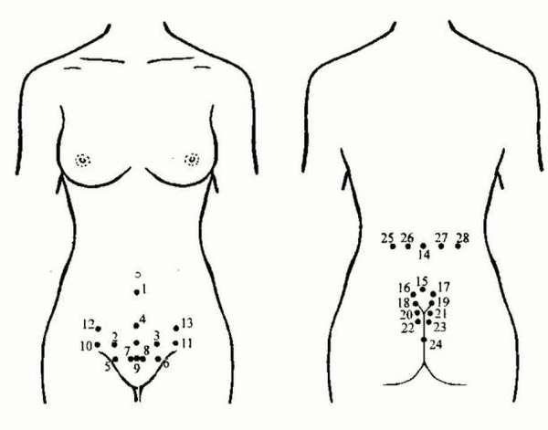 Пиявки для похудения куда ставить, схема и точки для гирудотерапии.